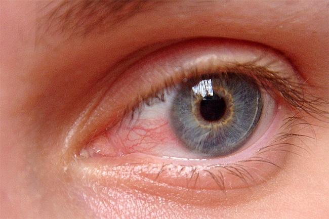 Surfer's Eye